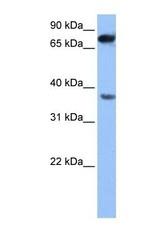 NBP1-54808 - ZCCHC12