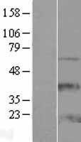 NBL1-17990 - ZCCHC13 Lysate