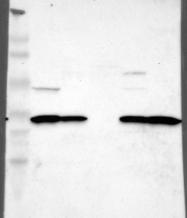 NBP1-81888 - ZCCHC16
