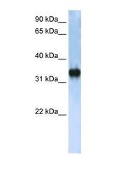 NBP1-57282 - ZCCHC17