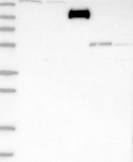 NBP1-82257 - ZCCHC6
