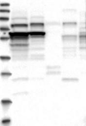 NBP1-89175 - ZCCHC7