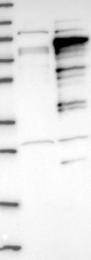 NBP1-89177 - ZCCHC7