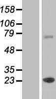 NBL1-17994 - ZCCHC7 Lysate