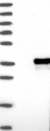 NBP1-84102 - ZCCHC9