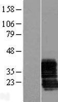 NBL1-17997 - ZCRB1 Lysate
