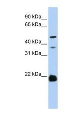 NBP1-60110 - ZDHHC14