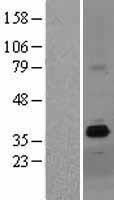 NBL1-18000 - ZDHHC15 Lysate