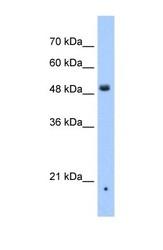 NBP1-59446 - ZDHHC16