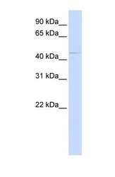NBP1-59737 - ZDHHC16
