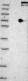 NBP1-81748 - HIP14 / ZDHHC17