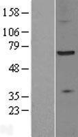 NBL1-18003 - ZDHHC17 Lysate