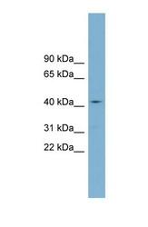 NBP1-60124 - ZDHHC18
