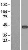 NBL1-18004 - ZDHHC2 Lysate