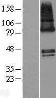 NBL1-18008 - ZDHHC9 Lysate
