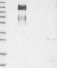 NBP1-88845 - ZEB1