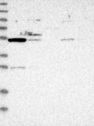 NBP1-84182 - ZSCAN21