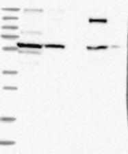 NBP1-81517 - ZFYVE16