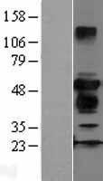 NBL1-18028 - ZFYVE27 Lysate