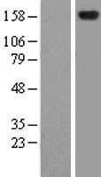 NBL1-18029 - ZFYVE9 Lysate