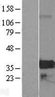 NBL1-18042 - ZMAT4 Lysate