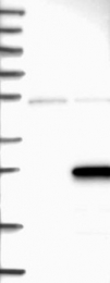 NBP1-85794 - ZMAT5