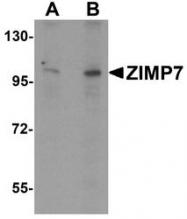 NBP1-76552 - ZMIZ2