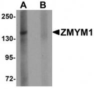 NBP1-76523 - ZMYM1