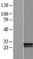 NBL1-18047 - ZMYM5 Lysate