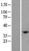 NBL1-18050 - ZMYND12 Lysate