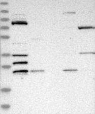 NBP1-84179 - ZMYND15