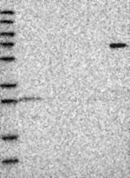 NBP1-81047 - ZMYND19
