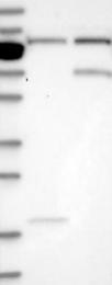 NBP1-81348 - ZNF10