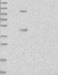 NBP1-81180 - ZNF114