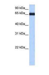 NBP1-56337 - ZNF14