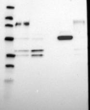 NBP1-86192 - ZNF185
