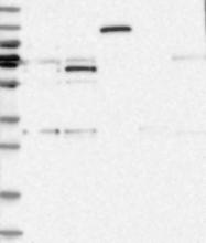 NBP1-85915 - ZNF189