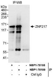 NBP1-78188 - ZNF217