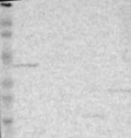 NBP1-86148 - ZNF222