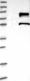 NBP1-82867 - ZNF23