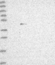 NBP1-92620 - ZNF239