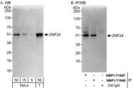 NBP1-71847 - ZNF24