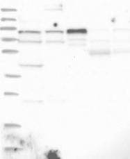 NBP1-81868 - ZNF263
