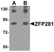 NBP1-76551 - ZNF281