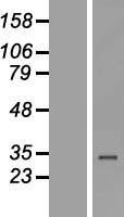 NBL1-18113 - ZNF302 Lysate
