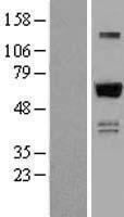 NBL1-18038 - ZNF307 Lysate