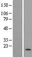NBL1-18115 - ZNF321 Lysate