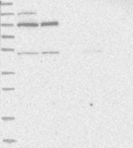 NBP1-84219 - ZNF341