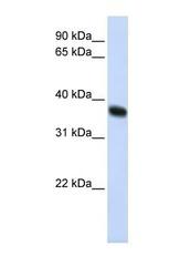 NBP1-55055 - RNF115