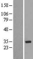 NBL1-18141 - ZNF397 Lysate
